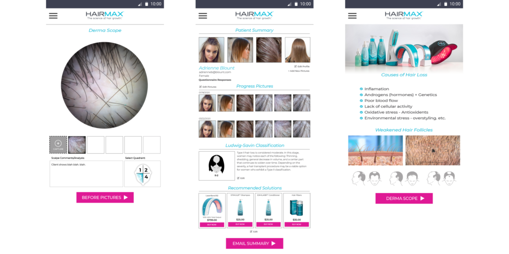 UppLabs created Healthcare app for preventing hair loss. Dermatoscope and hair loss classification